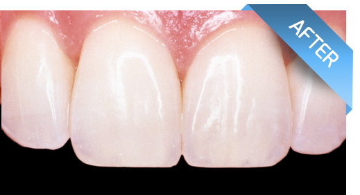 After treatment and reconstruction